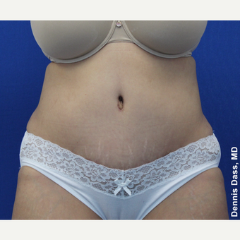 35-44 year old woman treated with Tummy Tuck after 3679788