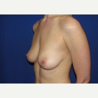 25-34 year old woman treated with Breast Augmentation before 1781937