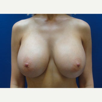25-34 year old woman treated with Breast Augmentation 1781937