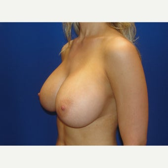 25-34 year old woman treated with Breast Augmentation after 1781937
