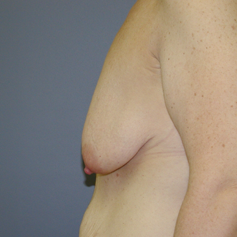 41 year old woman treated with Breast Lift before 3042796