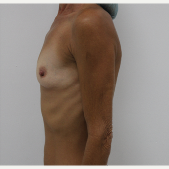 45-54 year old woman treated with Breast Augmentation before 3060207
