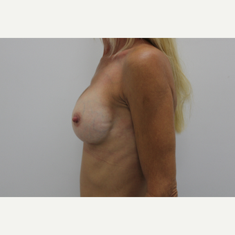 45-54 year old woman treated with Breast Augmentation after 3060207