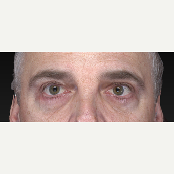 Lower Eyelid Surgery after 3305761
