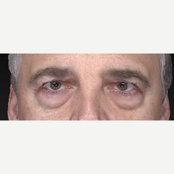 Lower Eyelid Surgery before 3305761