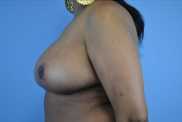53 year old woman treated with Breast Reduction 1808981