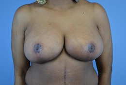 53 year old woman treated with Breast Reduction after 1808981