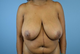 53 year old woman treated with Breast Reduction before 1808981