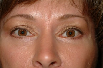 55 year old woman who does not like the excess skin on her upper and lower eyelids