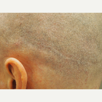 35-44 year old man treated with Scalp Micropigmentation for hair transplant scar after 2944783