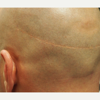 35-44 year old man treated with Scalp Micropigmentation for hair transplant scar before 2944783