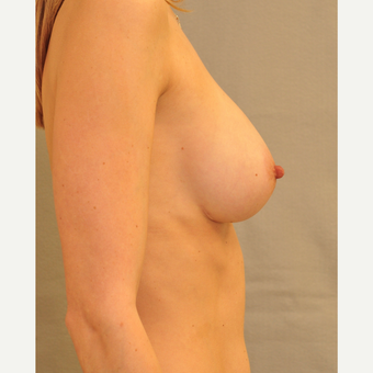 25-34 year old woman treated with Breast Augmentation after 3447905