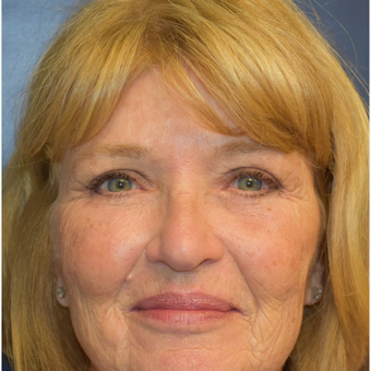 65-74 year old woman treated with Eyelid Retraction Repair after 2820456
