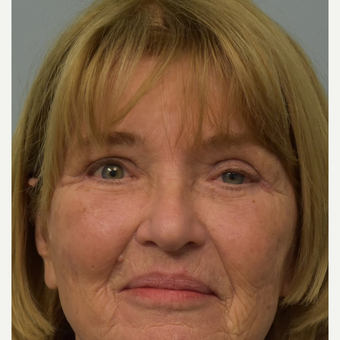 65-74 year old woman treated with Eyelid Retraction Repair before 2820456