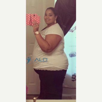 Gastric bypass results before 2452387