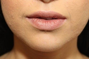Injectable Fillers & Lip Augmentation before 1076893
