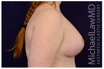 Breast Implants after 1422106