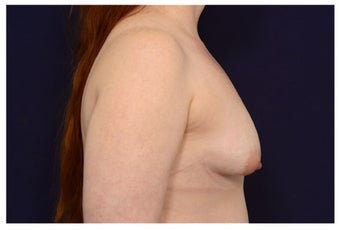 Breast Implants before 1422106