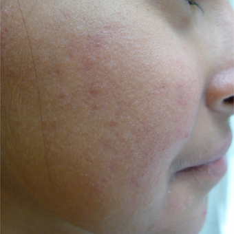 Acne treatments can take time... after 3719726