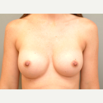 18-24 year old woman treated with Breast Implants after 3742971