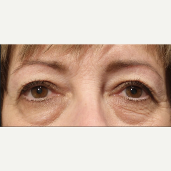 45-54 year old female treated with Lower Lid Eye Bags Treatment