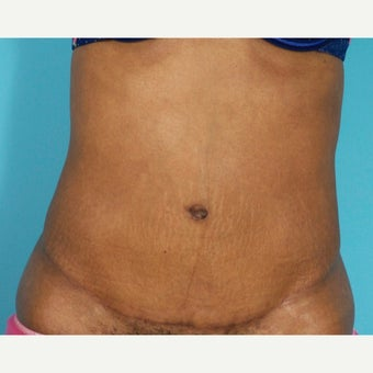 35-44 year old woman treated with Painless/Drainless Tummy Tuck after 2279119