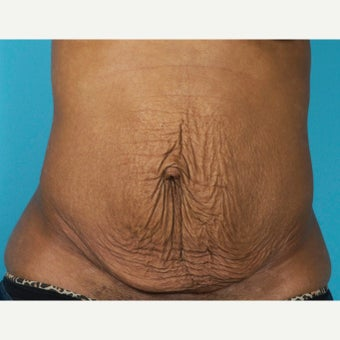 35-44 year old woman treated with Painless/Drainless Tummy Tuck before 2279119