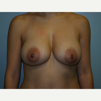 Breast Augmentation after 3562118