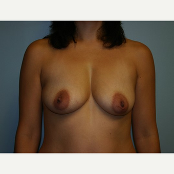 Breast Augmentation before 3562118
