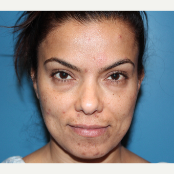 35-44 year old woman treated with Eyelid Surgery before 3126506