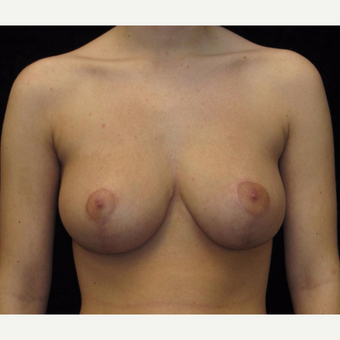 18 year old woman treated with Breast Reduction after 3026017