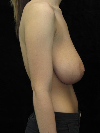 18 year old woman treated with Breast Reduction 3026017