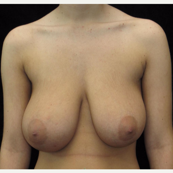 18 year old woman treated with Breast Reduction before 3026017
