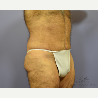 65-74 year old man treated with Tummy Tuck after 3422107