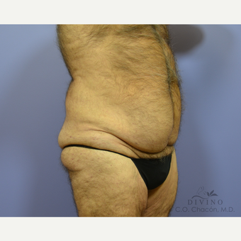 65-74 year old man treated with Tummy Tuck before 3422107