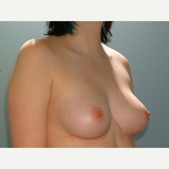19 y/o Transaxillary Submuscular Breast Augmentation before 3066338