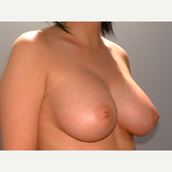 19 y/o Transaxillary Submuscular Breast Augmentation after 3066338