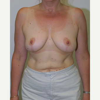 35-44 year old woman treated with Breast Reduction after 3512663