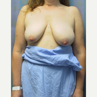 35-44 year old woman treated with Breast Reduction before 3512663