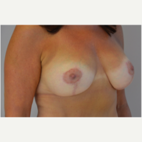 Breast Lift with Implants after 3058191