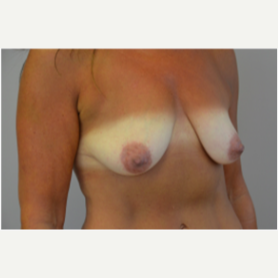 Breast Lift with Implants before 3058191