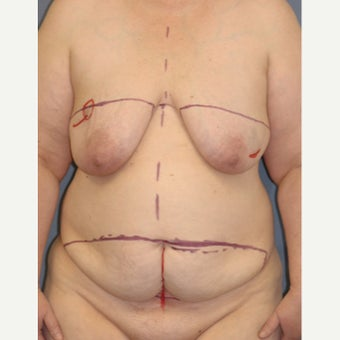 45-54 year old woman treated with Breast Reconstruction before 1835942