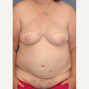 45-54 year old woman treated with Breast Reconstruction after 1835942