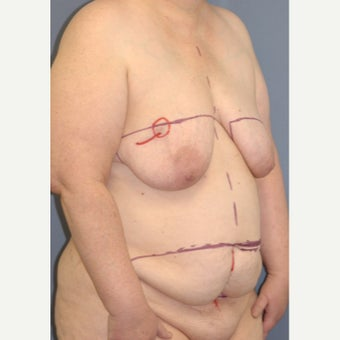 45-54 year old woman treated with Breast Reconstruction 1835942