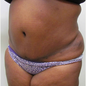Tummy Tuck for This 39 Year Old African American Woman after 3387391