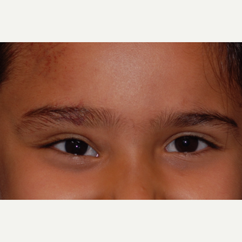 17 or under year old woman treated with Eyelid Surgery after 3625159