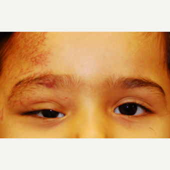 17 or under year old woman treated with Eyelid Surgery before 3625159