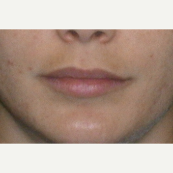25-34 year old woman treated with Restylane before 3147076
