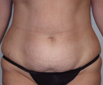 Abdominoplasty in 37 year old woman before 1000495