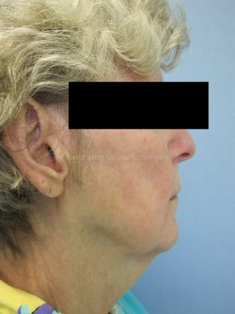 Woman, fillers used to lift cheeks